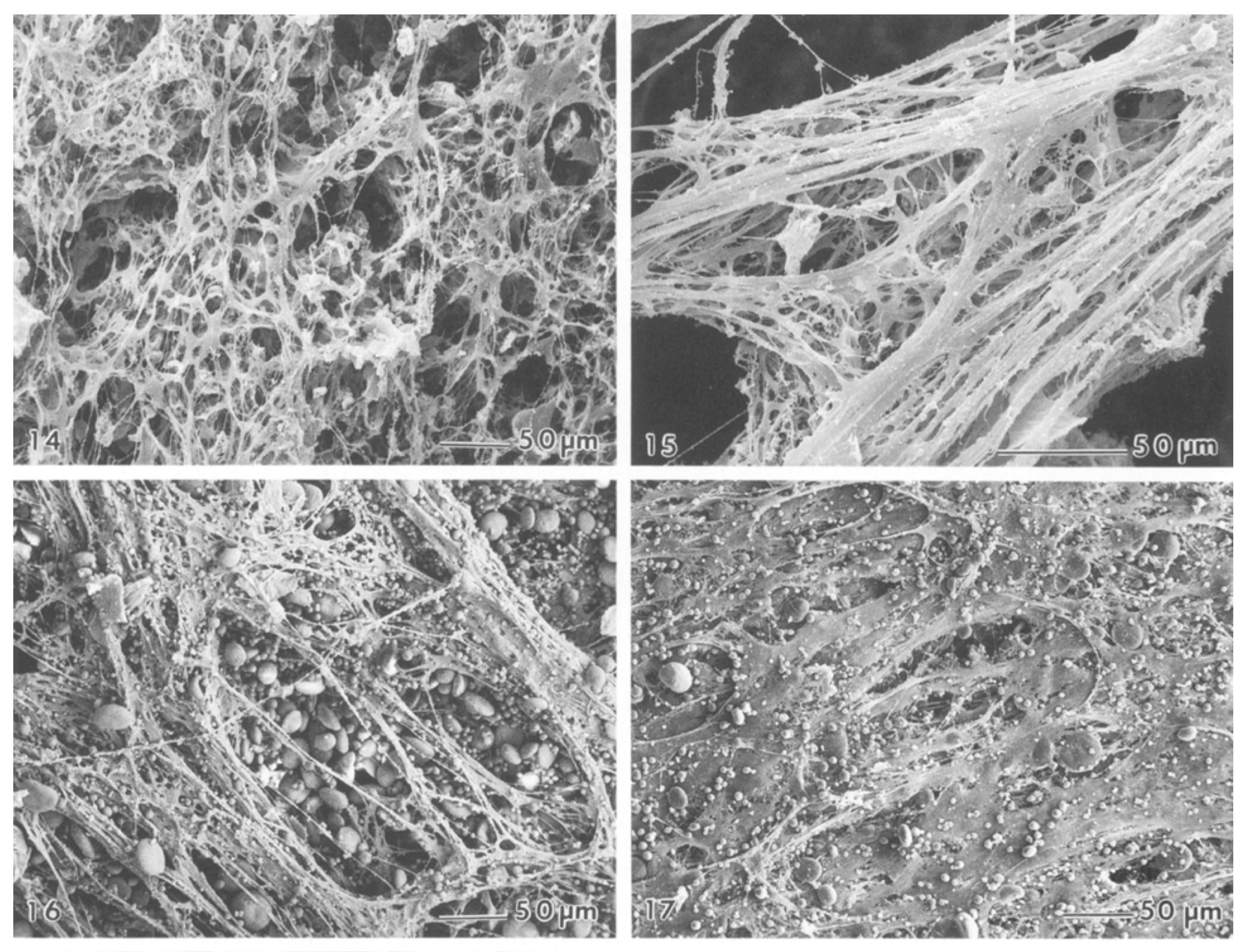 Neljä kuvaa sitkoproteiineista elektronimikroskoopilla